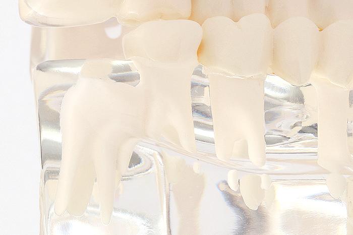 歯科口腔外科・親知らず